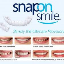 Snap On Smile II